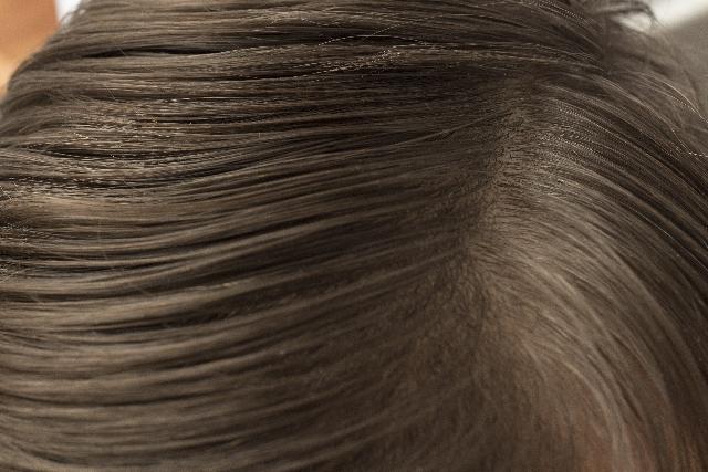 女性の薄毛の原因は?薄毛治療ってどういうことするの?